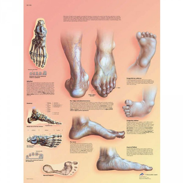 poster d'anatomie: malformation des pieds, 50 x 67 cm